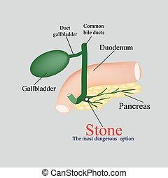 piedra, pancreático, bilis, duct., el, vejiga, duodeno, bilis, ducts., vector, ilustración, en, un, fondo gris