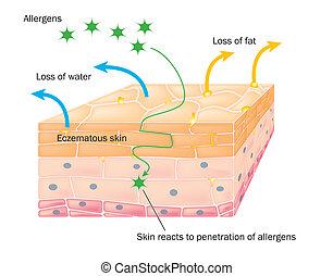 piel, acción, eczema