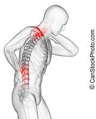 pijnlijk, back, en, hals