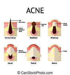 pimples., 平ら, whiteheads, 健康, ニキビ, pustules, 皮膚, papules, blackheads, style., タイプ