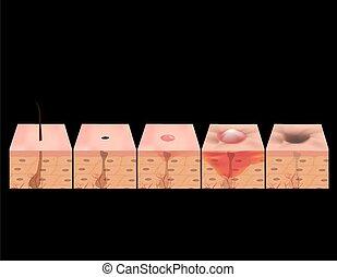 pimples., illustration, enflammé, acné, comedones, skin.,...
