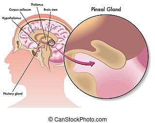 pineal, 腺