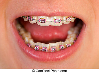 Pink braces - Close up of a beautiful pink braces