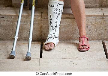plâtre, femme, jambe