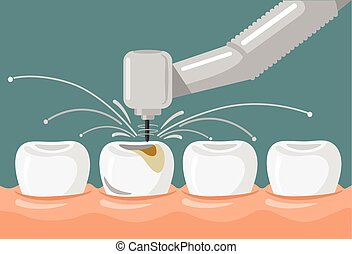 plano, dental, vector, ilustración