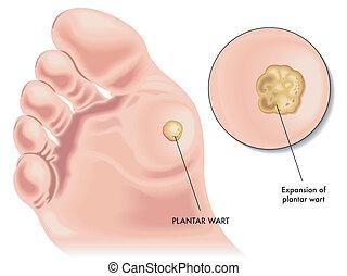 plantar wart - medical illustration of the symptoms of...