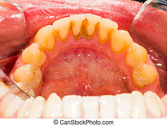 Plaque in Denture - Dental plaque on human lower denture.
