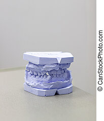 Plaster cast of teeth from plaster at the orthodontist.