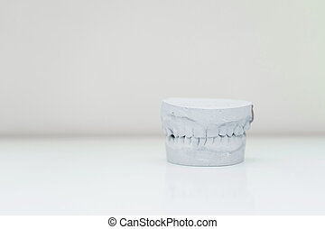 plaster cast of the jaw on a table in a bright room