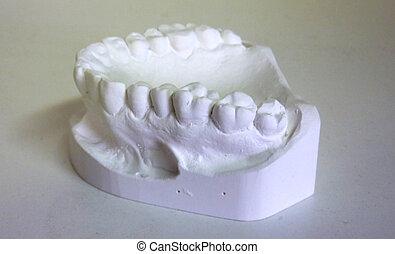 Plaster teeth - White plaster teeth for dental technician