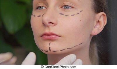 Plastic surgeon marking woman face. - Plastic surgeon...