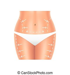 Plastic surgery belly and legs isolated vector - Plastic...