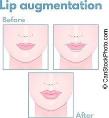 plastic surgery lip correction and increase in volume, a...