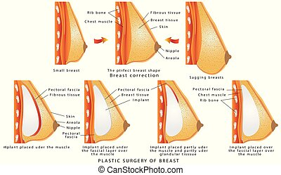 Plastic surgery of breast