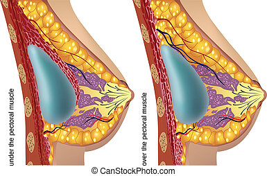 Plastic surgery of breast implants. Vector illustration