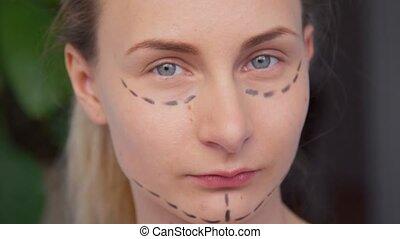 plastique, face., femme, chirurgien, marquer