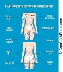 plastische chirurgie, koerper, korrektur, vektor, illustration., heben, plasty, liposuction, cellulite, abfuhr, und, dicker , verlieren