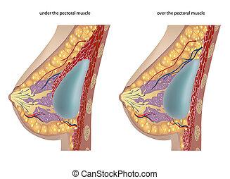 plasztikai sebészet, közül, mell, implants., vektor