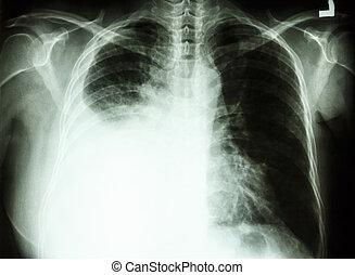 pleural, effusion, debido, a, cancer pulmonar