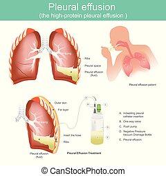 pleural, effusion, effusion., high-protein