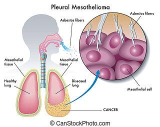 pleural, mesothelioma