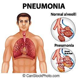 pneumonia, alveoli, sano, comparación