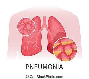 pneumonia, beschädigt, menschliche , lungen