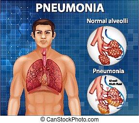 pneumonia, comparación, alveoli, sano