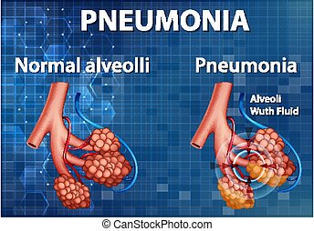 pneumonia, comparación, sano, alveoli