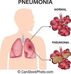 Pneumonia concept background, realistic style