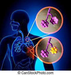 Pneumonia - Normal alveoli vs Pneumonia