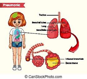 pneumonia, orvosi fogalom, tudományos, ábra