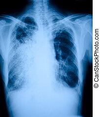 pneumonia, pacientes, radiografía, película