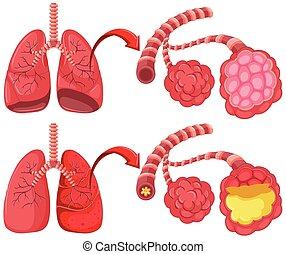 pneumonia, umano, polmoni