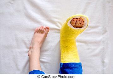 poco, pierna rota, boy., molde, unrecognizable