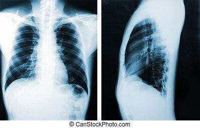 podoba, lékařský, muži, hruď, diagnosis., rentgen, názor