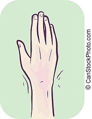 poignet, douleur, symptôme, illustration, main