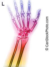 poignet, image, rayon x, coloré, main
