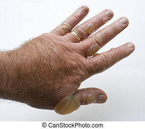 Hand that is swollen with blister after handling poison ivy