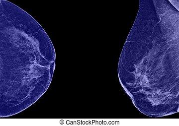 poitrine, mammogram, latéral, femme