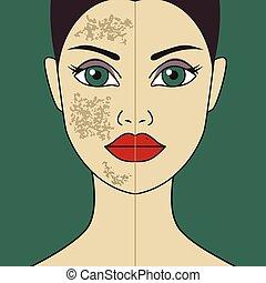 polissage, filles, laser, peau
