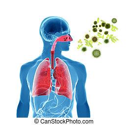 Pollen allergy / Hay fever/ Influenza infection - 3d...