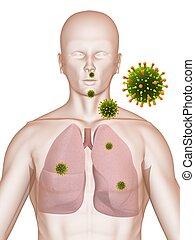 polmone, infezione