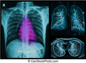polmoni, raggi x, immagine, torace, sotto, 3d