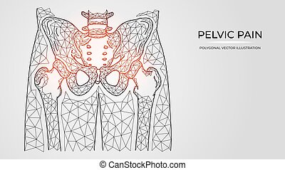 Polygonal vector illustration of pain, inflammation or injury in the pelvis and hip joint. Medical orthopedic diseases templates
