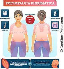 Polymyalgia rheumatica vector illustration. Labeled...