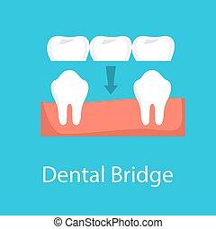 pont, dentaire, idée, dent, prothèse, concept.
