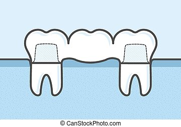 pont, dentaire