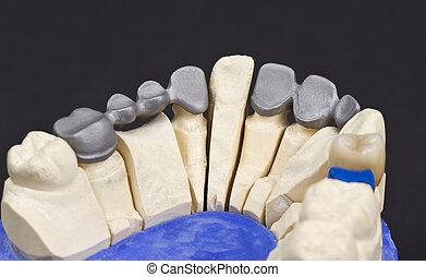 pont, dentaire, partie, métal