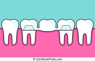 pont, dentaire, rang, dents